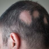 What Causes Alopecia Areata & Hair Loss In People?