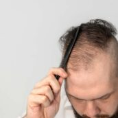 Can Protein Deficiency In Body Lead To Hair Loss?