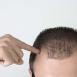 What To Expect After Your Scalp Micropigmentation Treatment
